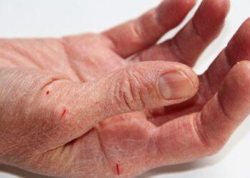 """ellerde catlama varsa catlak el goruntusu - El çatlaklarına ne iyi gelir? El çatlamasına 9 doğal çözüm! - Sağlık Haberleri - Sağlıkla İlgili Güncel Bilgi - El çatlaklarına ne iyi gelir? Ellerde çatlama ve yarılmalar neden olur? El çatlamasına karşı hangi krem kullanılmalı ve ellerde çatlak ve yarılmalar için hangi doğal çözümler uygulanabilir? Siz de """"ellerim çatlıyor, kanıyor ne yapmalıyım"""" diye soruyorsanız uzman doktor görüşleriyle hazırlanmış pratik çözüm önerilerimizi dikkate alın."""
